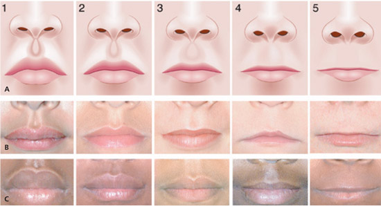 lip-philtrum-gids