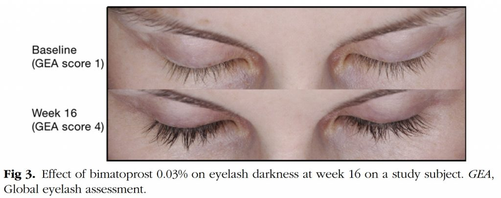 Effect bimatoprost op wimpergroei Smith et al., 2012